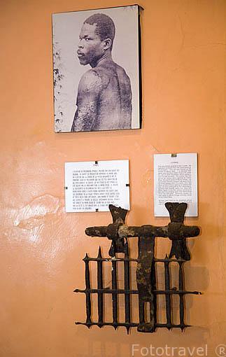 Foto de Cyparis, uno de los pocos supervivientes de la erupción del volcan Pelee en 1902. Sobrevivio 4 dias y 3 noches. Despues mostro sus cicatrices en USA gracias a un acuerdo con el circo Barnum. Museo de Franck Perret. ST-PIERRE. Isla de MARTINICA. Francia. Caribe